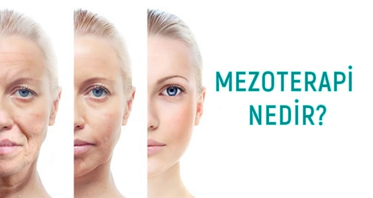 Photo of Mezoterapi Nedir?